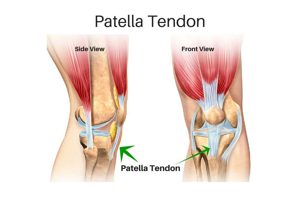 strained tendon